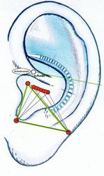 Ohr Akupunktur
