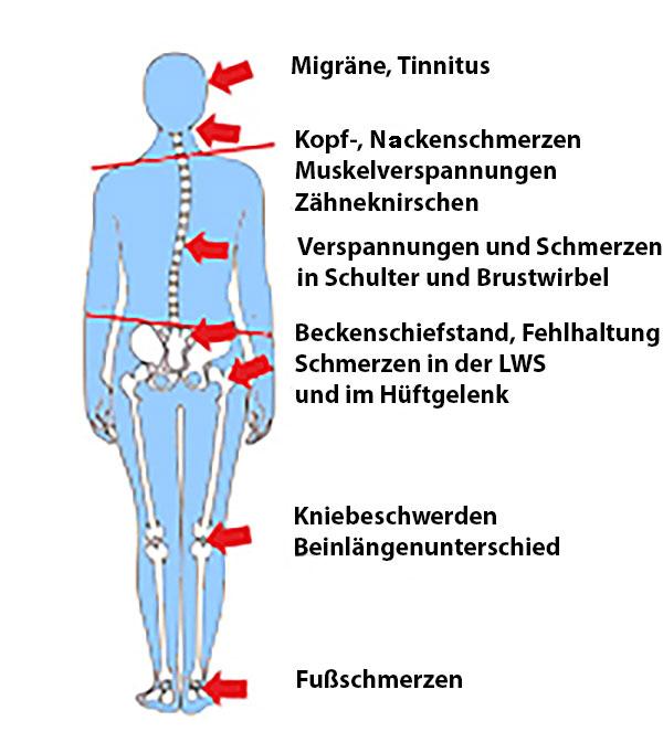 Symptome bei CMD