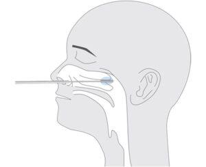 Nasenabstrich